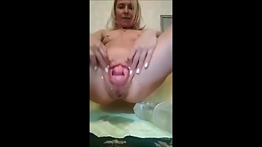 fisting prolapse amazing Sindy
